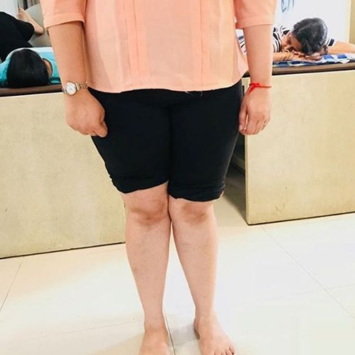 Dr. Drashti Shah, Registered Physiotherapist, Posture Restoration, Posture Restoration Specialist, Posture Restoration Trainer, Posture Restoration Treatment, Posture Restoration Therapy, Mumbai, Gujarat, India