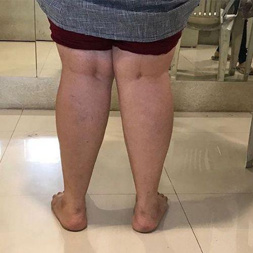 Dr. Drashti Shah, Registered Physiotherapist, Posture Restoration, Posture Restoration Specialist, Posture Restoration Trainer, Posture Restoration Treatment, Posture Restoration Therapy, Mumbai, Gujarat, India